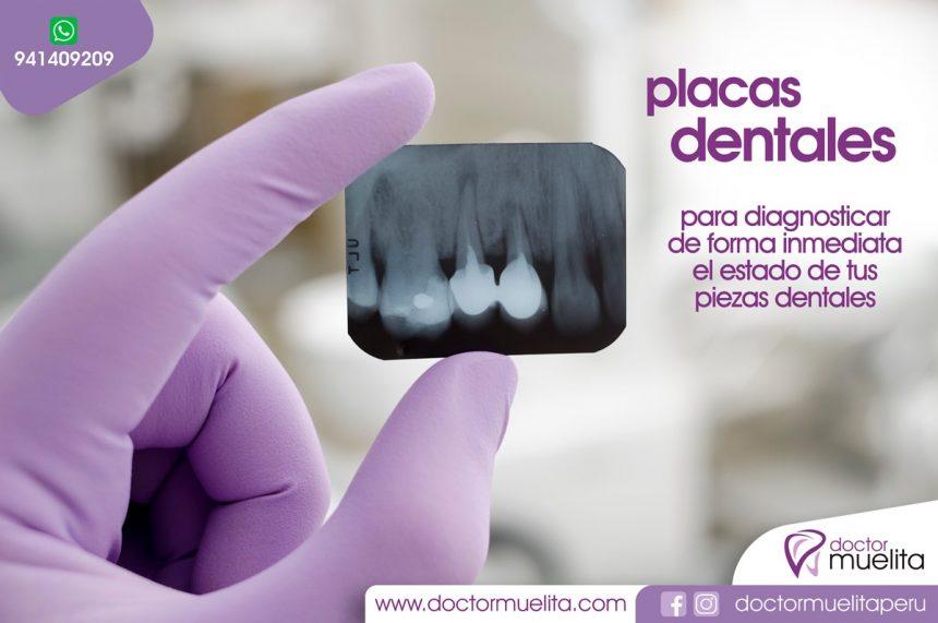 Radiografias Dentales