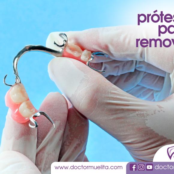 Protesis Parcial Removible
