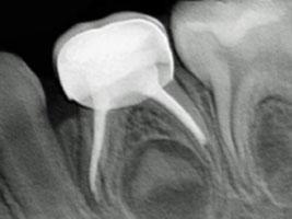 Endodoncia Niños