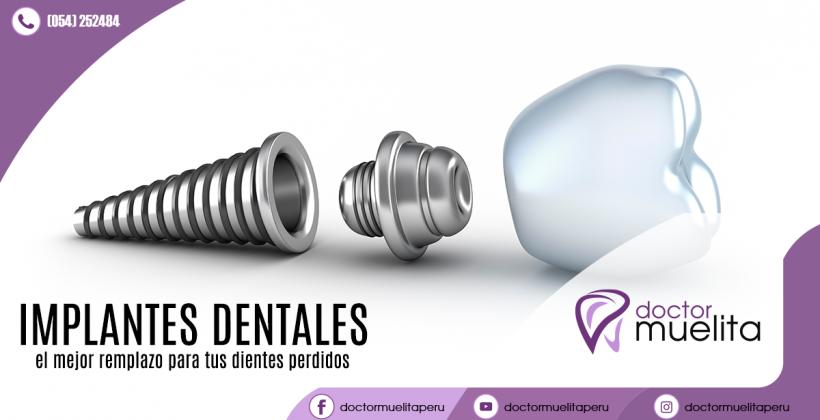 ¿Sábes qué es un implante dental?