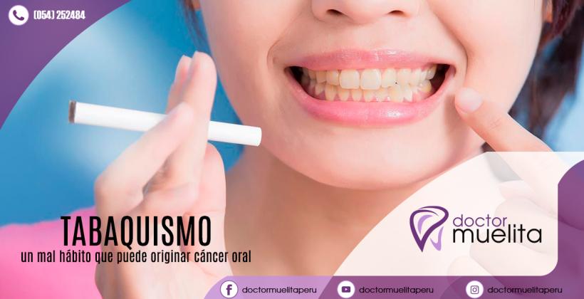 ¿Sabes el daño que le haces a tus dientes el fumar diariamente un cigarrillo?