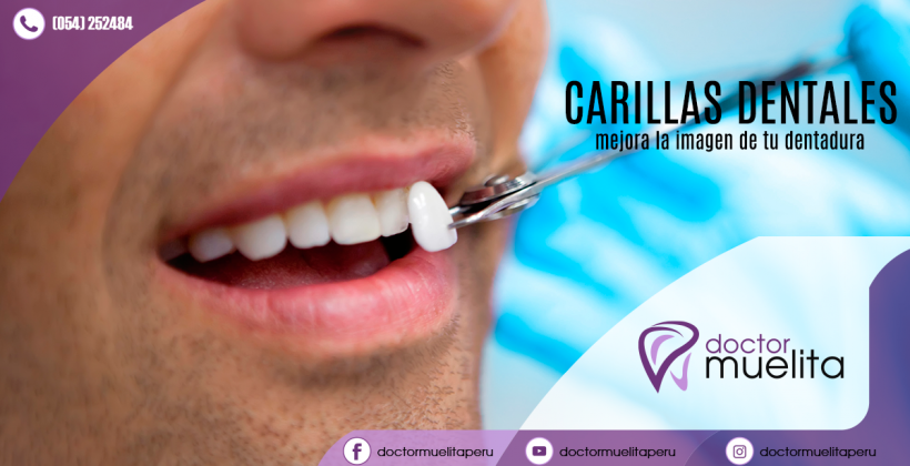 ¿Sabes qué son las carillas dentales y para que sirven?