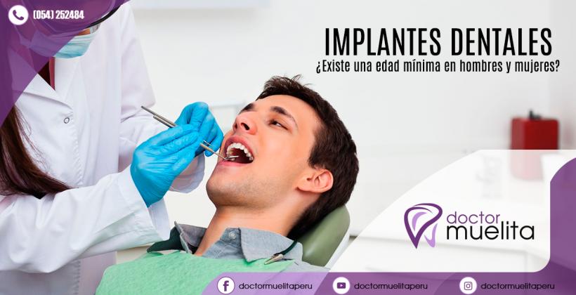 ¿Cuál es la edad mínima para colocar implantes dentales?