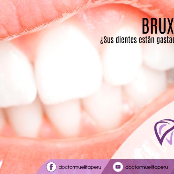 ¿Sus dientes rechinan o suenan como bisagras?