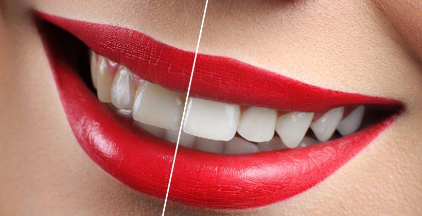Diseño de sonrisa: ¿Qué es y cómo funciona?