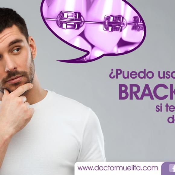 ¿Puedo usar brackets si tengo más de 35 años? ¡Claro que es POSIBLE!
