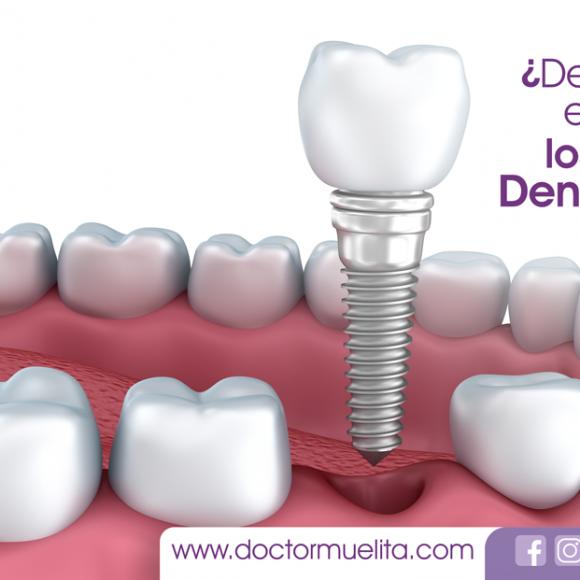 ¿De qué material están hechos los Implantes Dentales?