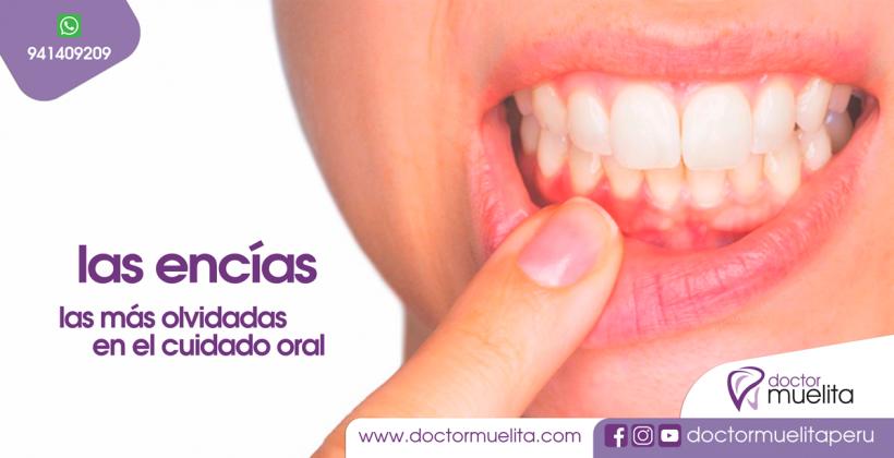 Las ENCÍAS, las más olvidadas en el cuidado oral