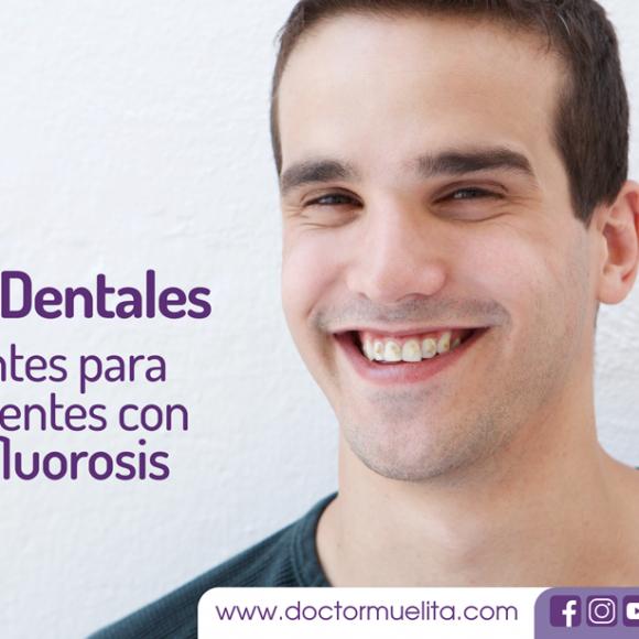 Las Carillas Dentales, excelentes para cubrir Hiperfluorosis (Dientes Manchados)
