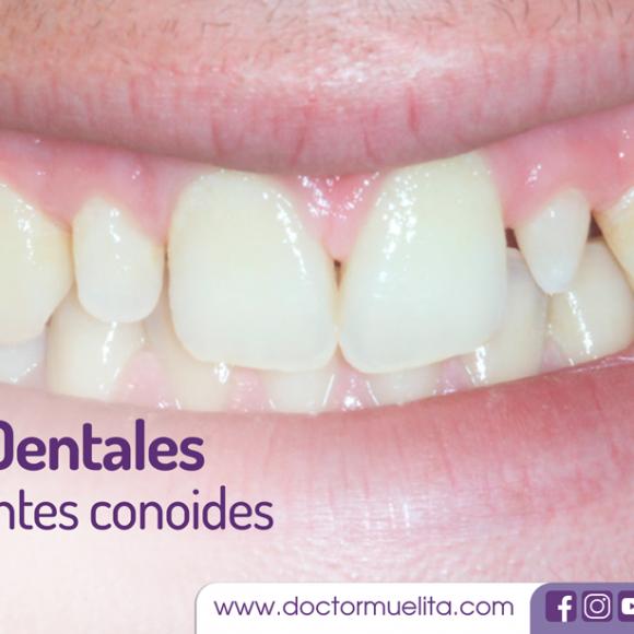 Carillas Dentales, ideales para cubrir Dientes Conoides